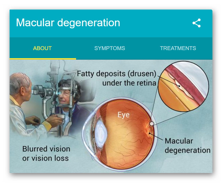Age Realted Macualr Degeneration